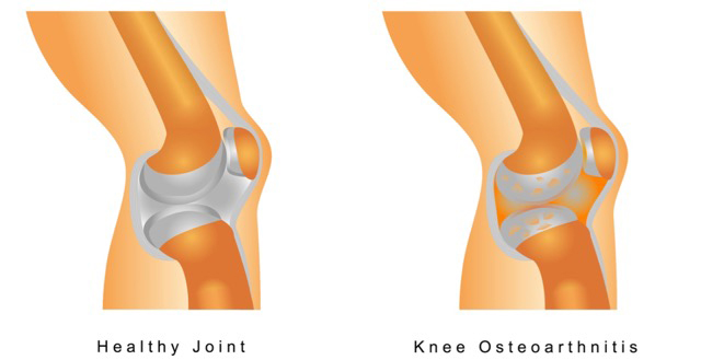 Diagram of a knee.