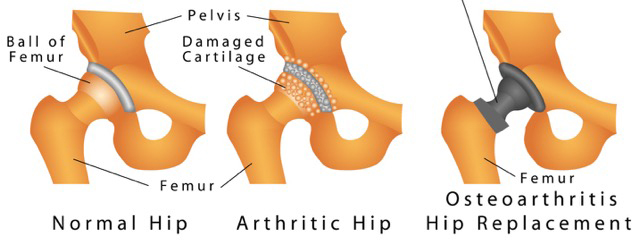 Diagram of a hip.