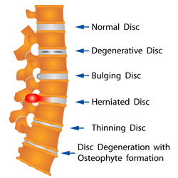 diagram of a herniated disk.