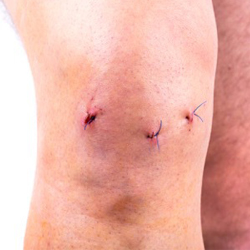 photo of knee with stitches post-surgery.