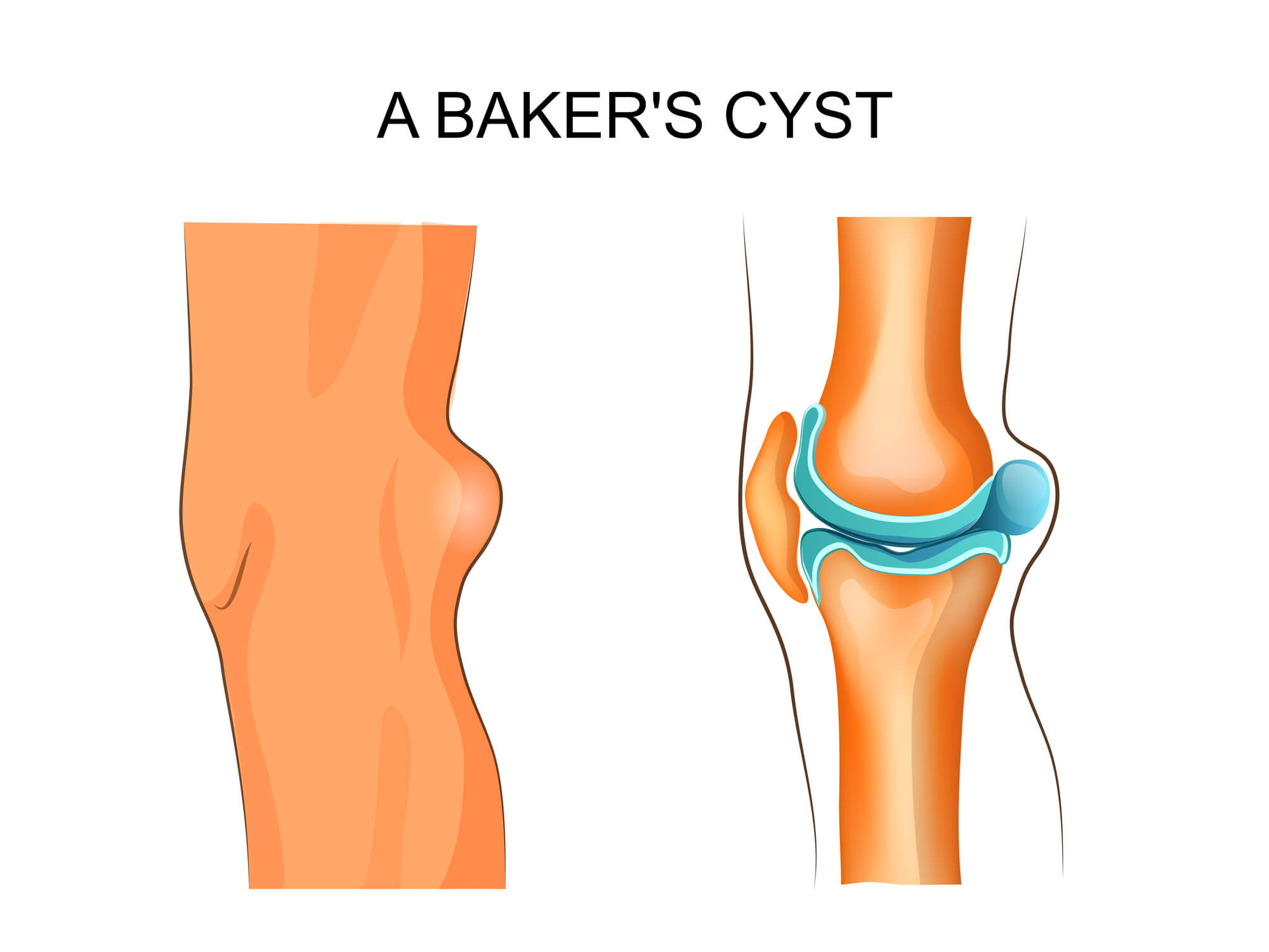 Illustration of knee with Baker's cyst.