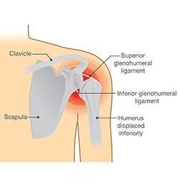 Strange Shoulder Dislocations And Chronic Instability Direct Orthopedic Care Wiring Digital Resources Instshebarightsorg