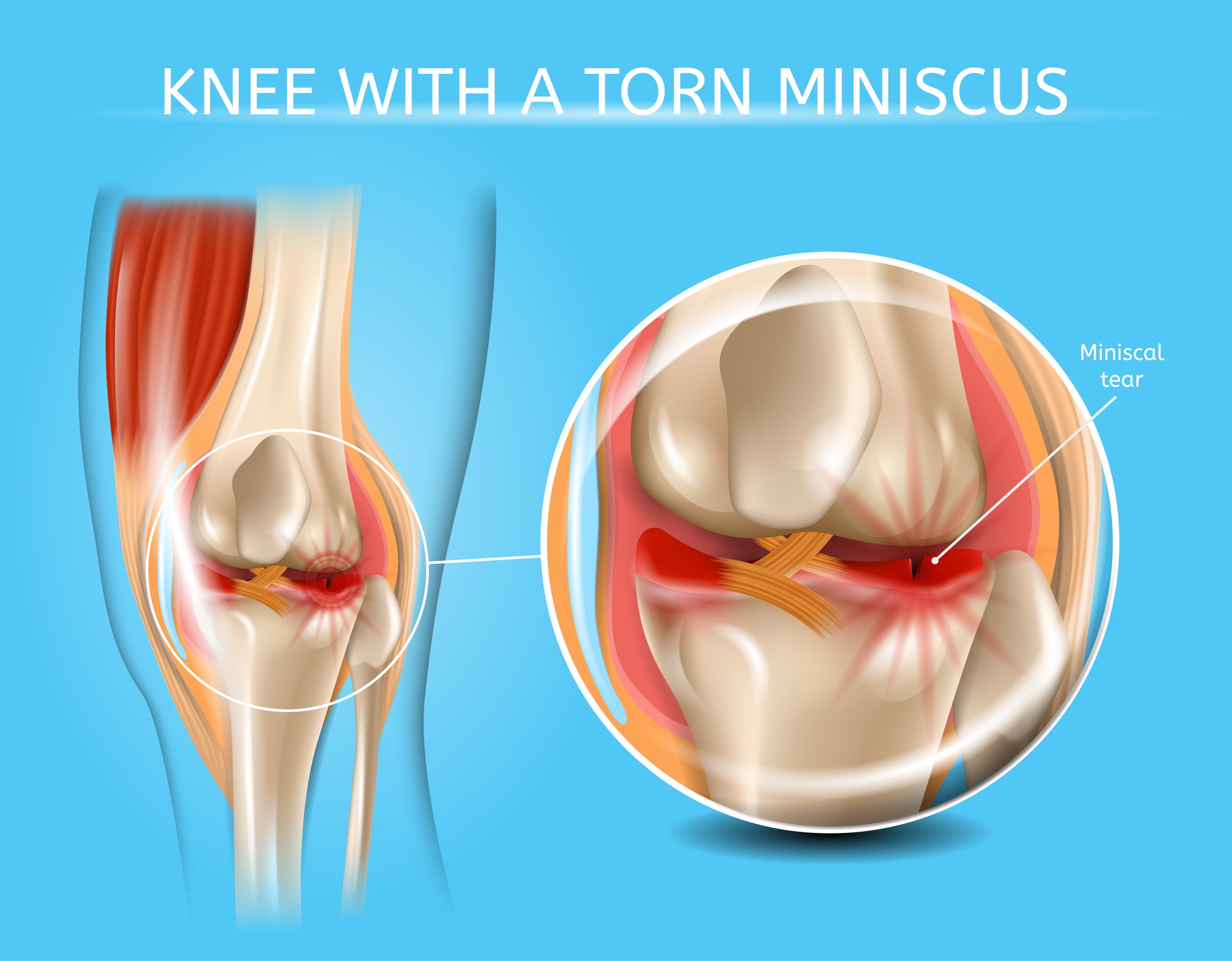 Illustration of knee with torn meniscus.