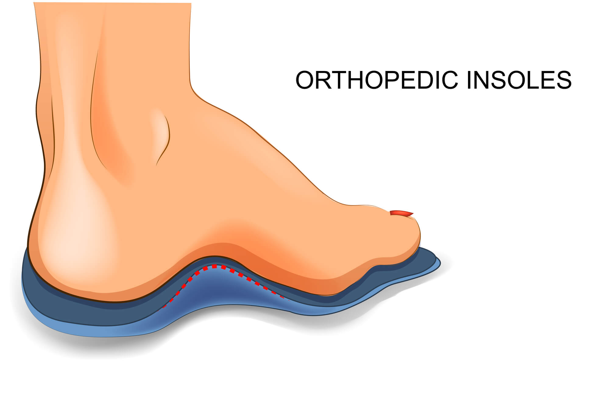 "Illustration of human foot, with text reading ""Orthopedic Insoles""."