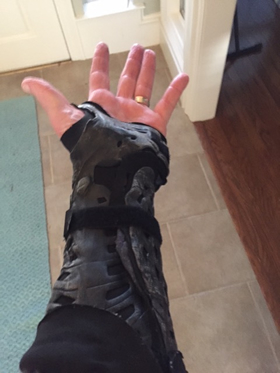 Wrist in a black brace.