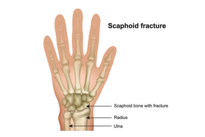 Bones of open hand showing scaphoid bone location and fracture.