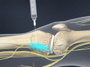 Illustration of injection