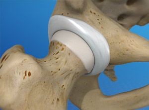Illustration close up of the hip joint