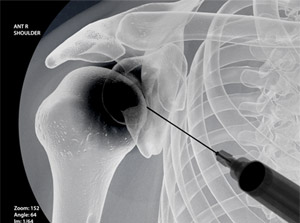 Illustration of a shoulder getting an injection to help pain
