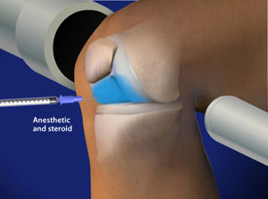 Illustration for Fluoroscopic Guided Steroid Injection for Knee Pain