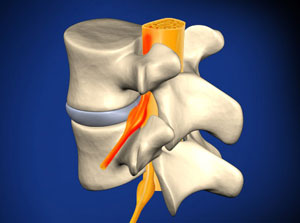 Illustration of Lumbar