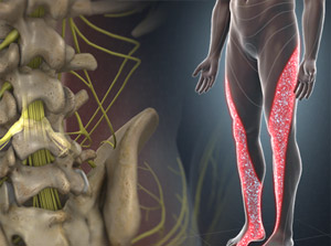 Illustration of leg areas and spine