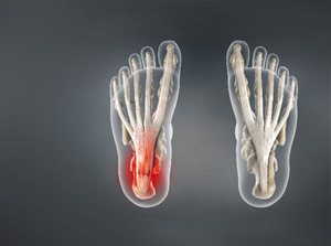 X-ray illustration of plantar fasciitis.