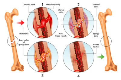 Illustration of stages of bone healing after a fracture.