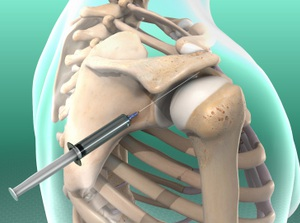 Illustration demonstrating Subacromial Injection
