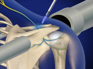 Simulated image demonstrating suprascapular nerve block