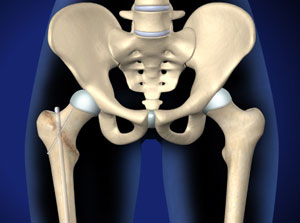 Illustration of hip bones.